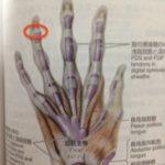 【改善症例18】手指の第一関節を曲げると痛い時