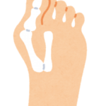 外反母趾の痛みで困っていませんか?