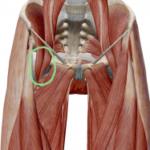 股関節の痛みに「腰椎の後ろへのズレ」が関係していることがあります